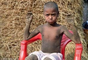 Բանգլադեշցի փոքրիկ տղան աստիճանաբար վերածվում է քարի (լուսանկարներ)