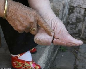 Չինաստանում տարածված ավանդույթի սարսափելի հետևանքները (ֆոտոշարք)
