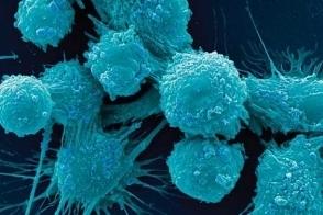 Փետրվարի 4-ը՝ Քաղցկեղի դեմ պայքարի միջազգային օր