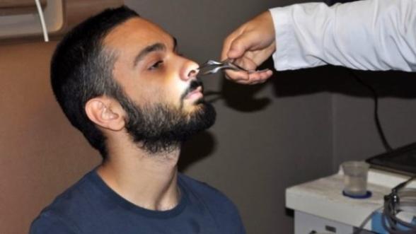Թուրք երիտասարդը 6 տարի շարունակ ապրել է քթի մեջ ատամով (լուսանկար)
