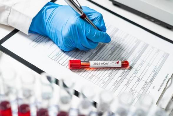 Число заразившихся коронавирусом в Армении достигло 407