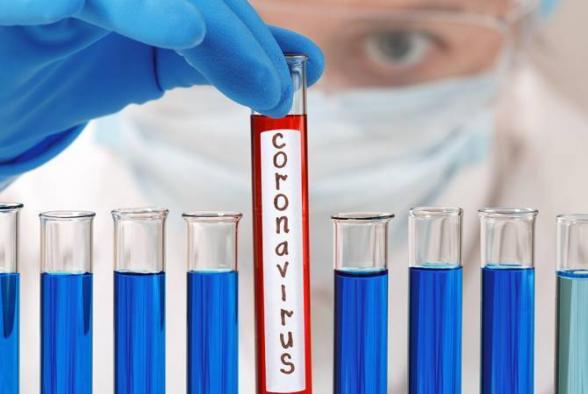 Менеджер кондитерской компании «Дароинк» заразился коронавирусом