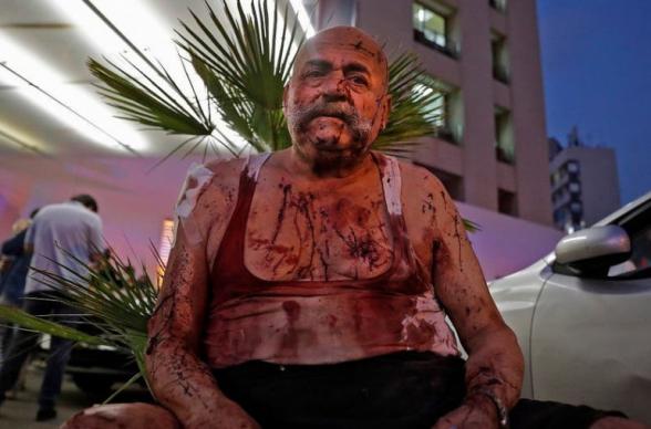 Բեյրութում պայթյունից զոհերի թիվը հասել է 78-ի, կա 4000 վիրավոր (տեսանյութ)