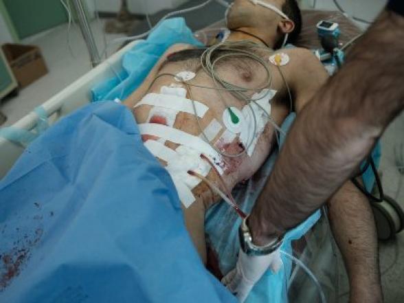 «Ռմբակոծության տակ աշխատող բուժաշխատողներ». ԱԳՆ խոսնակը լուսանկարներ է հրապարակել