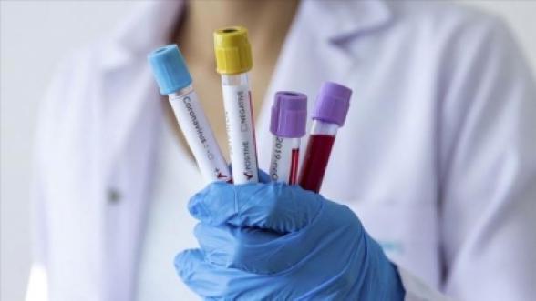 За сутки в Армении выявлен 1231 новый случай коронавируса, скончались еще 32 человека