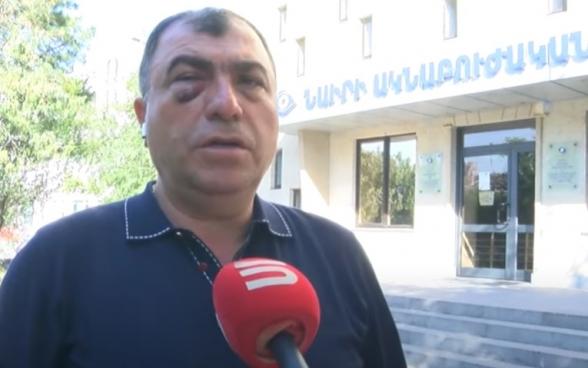 «Հայաստան» դաշինքից բերման ենթարկված քաղաքացուն ծեծել են․ նա մանրամասներ է պատմում