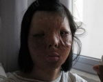 Չինուհու նոր դեմքն աճեցրել են նրա կրծքին (լուսանկարներ)