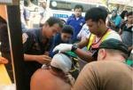 Թայլանդում ձկնավաճառը կտրել է ռուսաստանցու ականջը