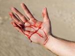 Մորը կացնահարած դուստրը հաշվառված է «Շիզոֆրենիա,  պարանոիդ ձև» ախտորոշմամբ