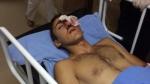 17-ամյա դեռահասը բախումներում կորցրել է աչքը (տեսանյութ)