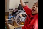 Զիոն Հարվին աշխարհում առաջին երեխան է, ով ձեռքերի կրկնակի փոխպատվաստում է ստացել