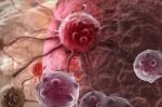Ученые назвали основные признаки рака