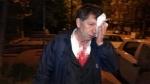 Թուրք լրագրող Յավուզ Դեմիրաղը մահակներով ծեծի է ենթարկվել