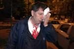 Դաժան ծեծի ենթարկված ընդդիմադիր լրագրողն Էրդողանին վիրավորելու համար կազատազրկվի