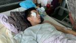 Ուկրաինայում ադրբեջանցիները հայ ուսանողին նետել են պատուհանից