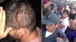 По факту столкновений между полицейскими и демонстрантами в Иджеване возбуждено уголовное дело