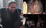 Մարտի 1-ի ամբոխը «հպարտ քաղաքացի էր», իսկ Իջևանի ցուցարարները՝ հանցագոր՞ծ (տեսանյութեր)